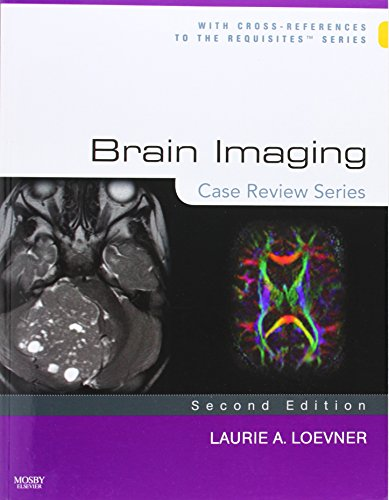 9780323031790: Brain Imaging: Case Review Series, 2e