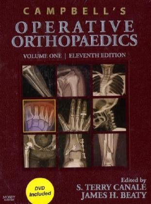 9780323033299: Campbell's Operative Orthopaedics: 4-Volume Set with DVD, 11e