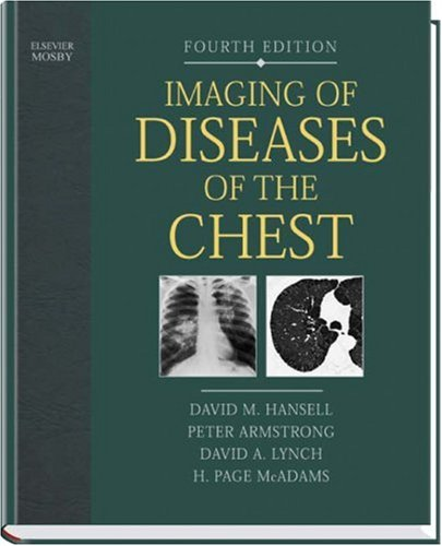 9780323036603: Imaging of Diseases of the Chest