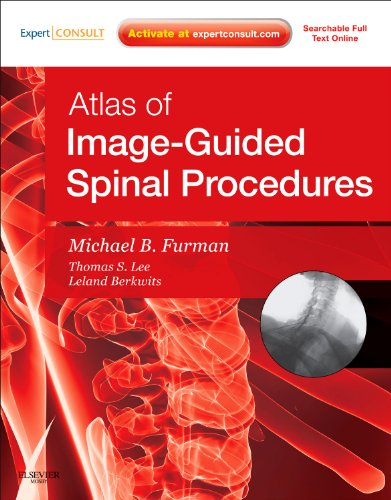 9780323042994: Atlas of Image-Guided Spinal Procedures, 1e