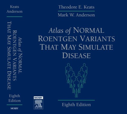 9780323043007: Atlas of Normal Roentgen Variants That May Simulate Disease, 8e