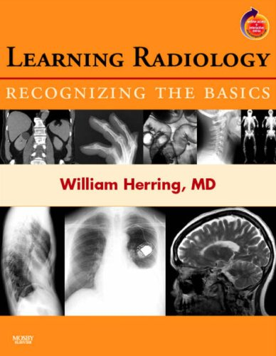 9780323043175: Learning Radiology: Recognizing the Basics (With STUDENT CONSULT Online Access), 1e