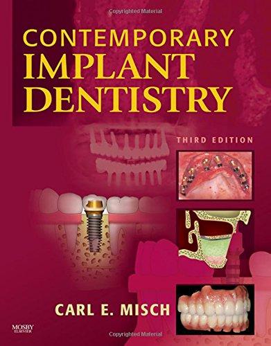 9780323043731: Contemporary Implant Dentistry, 3e