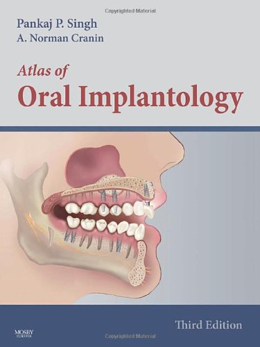 Atlas of Oral Implantology, 3e: Pankaj Singh DDS Diplomate ICOI Diplomate ABOI Fellow AAID