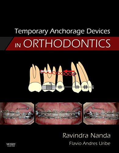 9780323048071: Temporary Anchorage Devices in Orthodontics, 1e