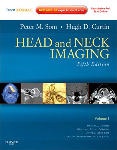 9780323053556: Head and Neck Imaging - 2 Volume Set: Expert Consult- Online and Print, 5e