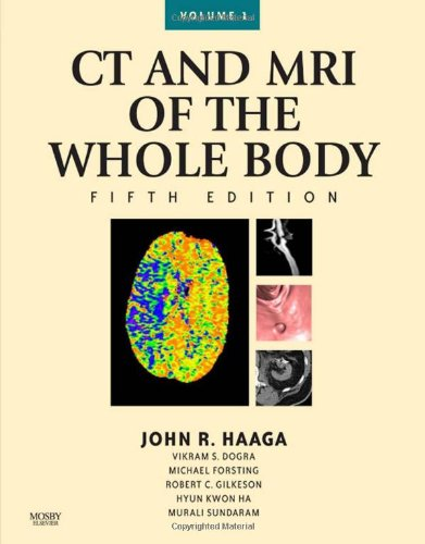 9780323053754: CT and MRI of the Whole Body, 2-Volume Set, 5e