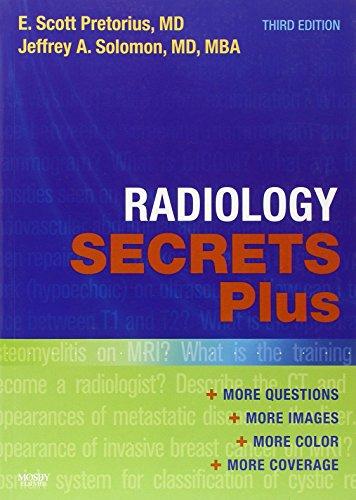 Radiology Secrets Plus, 3e: Pretorius MD, E. Scott; Solomon MD  MBA, Jeffrey A.