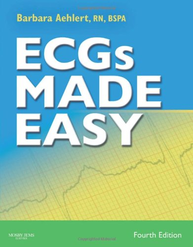 ECGs Made Easy - Book and Pocket: Barbara J. Aehlert