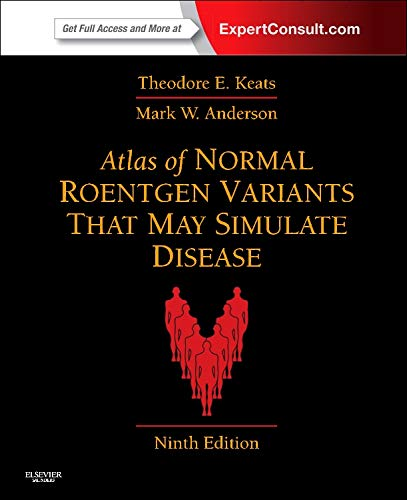9780323073554: Atlas of Normal Roentgen Variants That May Simulate Disease: Expert Consult - Enhanced Online Features and Print, 9e