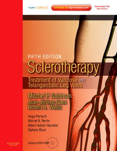 9780323073677: Sclerotherapy Expert Consult - Online and Print: Treatment of Varicose and Telangiectatic Leg Veins, Text with DVD, 5e