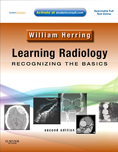 9780323074445: Learning Radiology, Recognizing the Basics (With STUDENT CONSULT Online Access), 2nd Edition