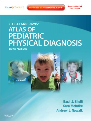 9780323079327: Zitelli and Davis' Atlas of Pediatric Physical Diagnosis: Expert Consult - Online and Print, 6e (Zitelli, Atlas of Pediatric Physical Diagnosis)