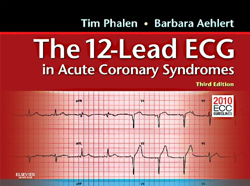 9780323080637: The 12-Lead ECG in Acute Coronary Syndromes: Pocket Reference for the 12-Lead ECG in Acute Coronary Syndromes