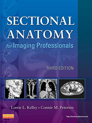 Sectional Anatomy for Imaging Professionals, 3e: Kelley MS RT(R),