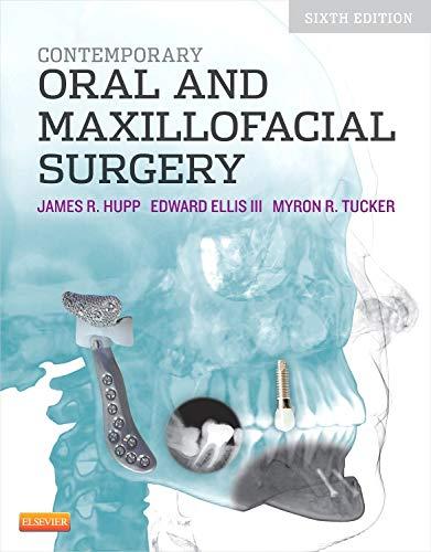 9780323091770: Contemporary Oral and Maxillofacial Surgery, 6e