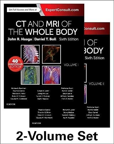 CT and MRI of the Whole Body,: John R. Haaga