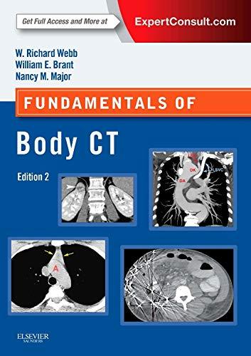9780323221467: Fundamentals of Body CT, 4e (Fundamentals of Radiology)