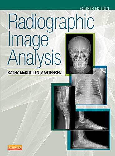 9780323280525: Radiographic Image Analysis, 4e