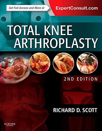 9780323286633: Total Knee Arthroplasty, 2e