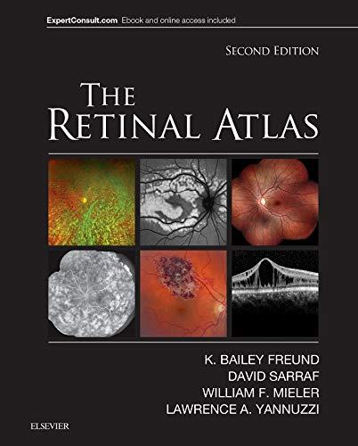 The Retinal Atlas, 2e: Freund MD, K.