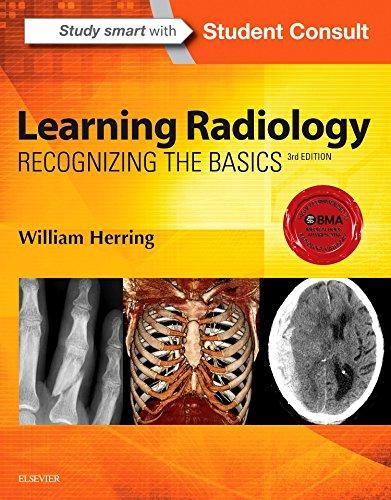 9780323328074: Learning Radiology: Recognizing the Basics, 3e