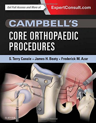 Campbell's Core Orthopaedic Procedures, 1e: S. Terry Canale MD