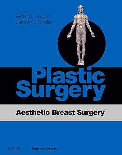 9780323357692: Plastic Surgery: Aesthetic Breast Surgery Access Code, 1e