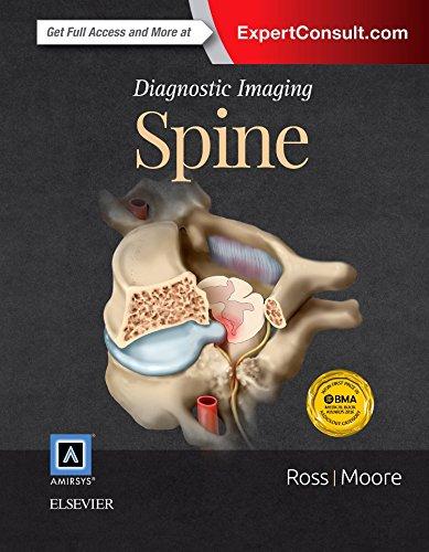 9780323377058: Diagnostic Imaging: Spine, 3e