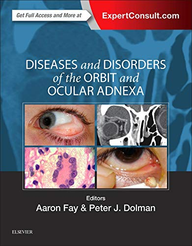 Diseases and Disorders of the Orbit and Ocular Adnexa, 1e: Aaron Fay MD
