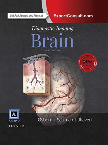 Diagnostic Imaging: Brain: Anne G. Osborn
