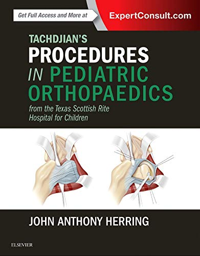 9780323448086: Tachdjian's Procedures in Pediatric Orthopaedics: From the Texas Scottish Rite Hospital for Children, 1e