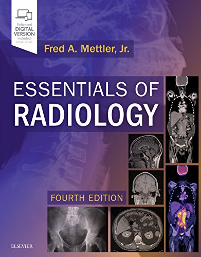 Essentials of Radiology : Common Indications and: Fred A. Mettler