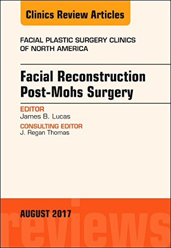 Facial Reconstruction Post-Mohs Surgery, An Issue Of: Lucas, James B.