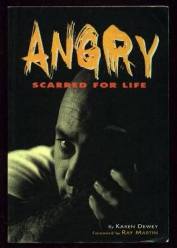 9780330273725: Angry : scarred for life.
