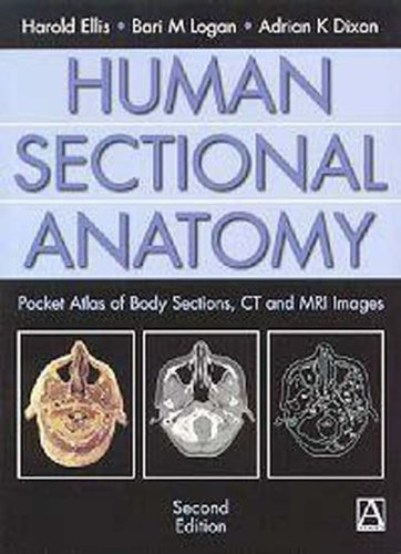 Human Sectional Anatomy, 2Ed: Pocket Atlas of Body Sections, CT and MRI Images (An Arnold Publication) (0340807644) by Dixon, Adrian; Ellis, Harold; Logan, Bari
