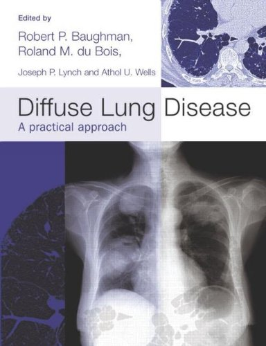 9780340810149: Diffuse Lung Disease: A practical approach