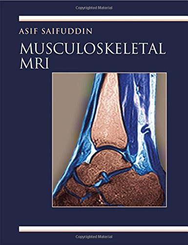 Musculoskeletal MRI: A Rapid Reference Guide (Mixed media product): Asif Saifuddin