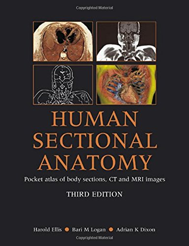 9780340912225: Human Sectional Anatomy: Atlas of Body Sections, CT and MRI Images, Third Edition