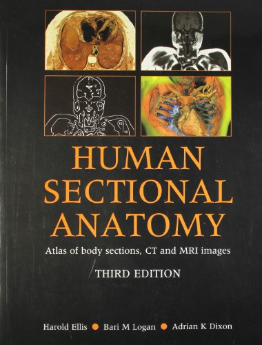9780340967782: Human Sectional Anatomy Atlas of Body Sections, CT and MRI Images