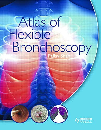 9780340968321: Atlas of Flexible Bronchoscopy