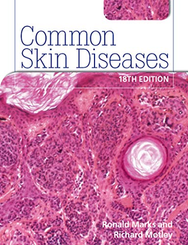 9780340983508: Common Skin Diseases 18th edition
