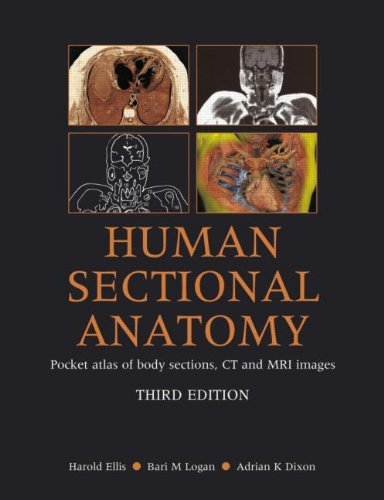 Human Sectional Anatomy: Pocket Atlas of Body Sections, CT and MRI Images, Third Edition (034098516X) by Harold Ellis; Bari M Logan; Adrian K. Dixon