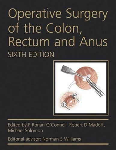 9780340991275: Operative Surgery of the Colon, Rectum and Anus, Sixth Edition