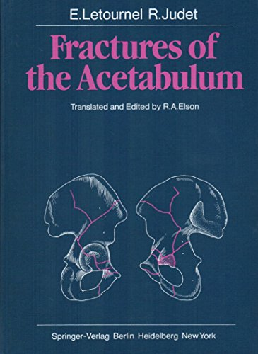 9780387098753: Fractures of the acetabulum