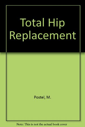 9780387131986: Total Hip Replacement (English and French Edition)