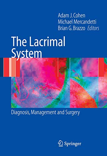 9780387253855: The Lacrimal System: Diagnosis, Management and Surgery