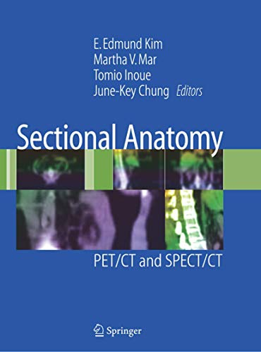 Sectional Anatomy: PET/CT and SPECT/CT (Hardcover)