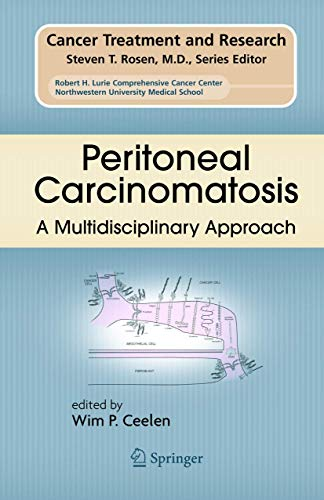 9780387489919: Peritoneal Carcinomatosis: A Multidisciplinary Approach (Cancer Treatment and Research)