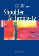 9780387501598: Shoulder Arthroplasty